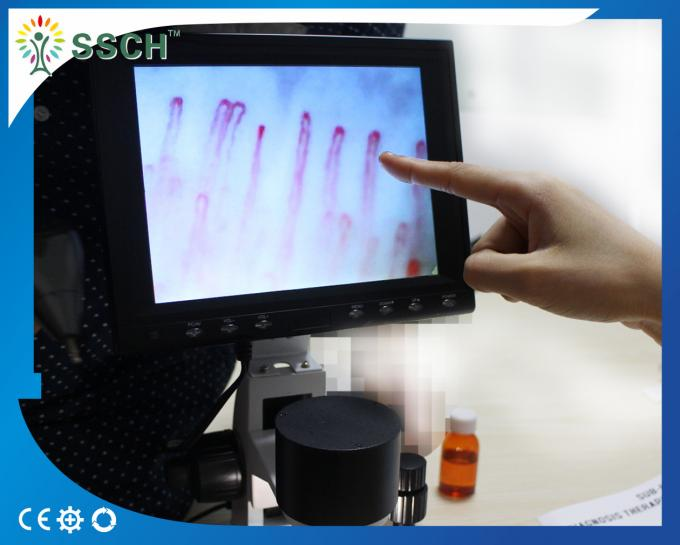 Portable Video Microcirculation Microscope Nailfold Capillary with CE