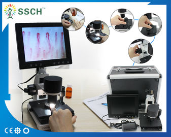 CE Approved LCD Screen Medical Microscope Capillary Microcirculation