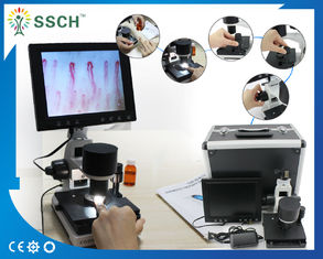 China Portable Video Microcirculation Microscope Nailfold Capillary with CE supplier