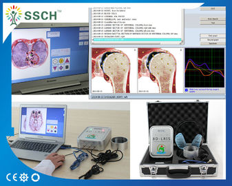AURA Function GY-518D With Kindly Post-sale 8D LRIS NLS Health Analyzer