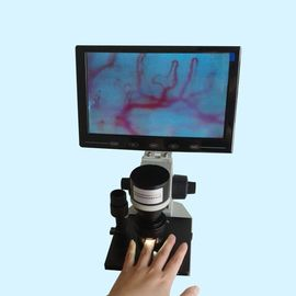 Nailfold Microcirculation Microscope for Nutritionist , nail microscope