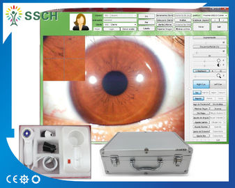 5.0 MP High Resolution USB Digital Iridology Eye Iriscope Body Health Analyzer 2560 x 1920