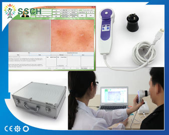 Professional Beauty Equipment Skin Hair Analyzer For Dead Skin Diagnostic Equipment
