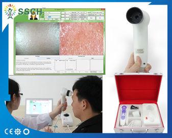 Facial Skin Moisture Analyzer Machine Skin Scope Analyzer Multi Function and Security