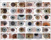 USB Eye Iriscope Scanner / Iridology Camera Analyzer 12.00 Mega Pixels