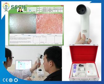 5.0 MP High Resolution USB Skin Scope Analyzer / Analysis Device for Diseases Scanning